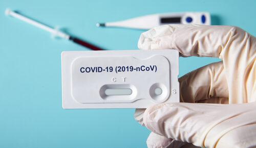 Αντιμετώπιση κρίσης COVID-19